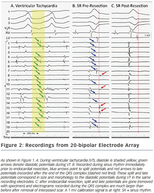 Figure 2: Recordings from 20-bipolar Electrode Array