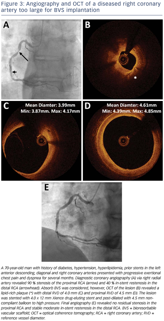 Figure 3: Angiography and OCT of a diseased right coronary artery too large for BVS implantation