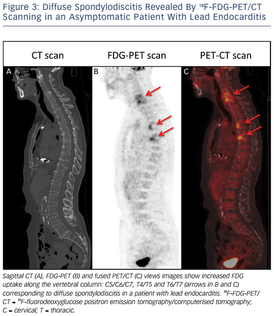 Figure 3: Diffuse Spondylodiscitis Revealed By 18F-FDG-PET/CT Scanning in an Asymptomatic Patient With Lead Endocarditis