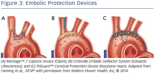 Figure 3: Embolic Protection Devices