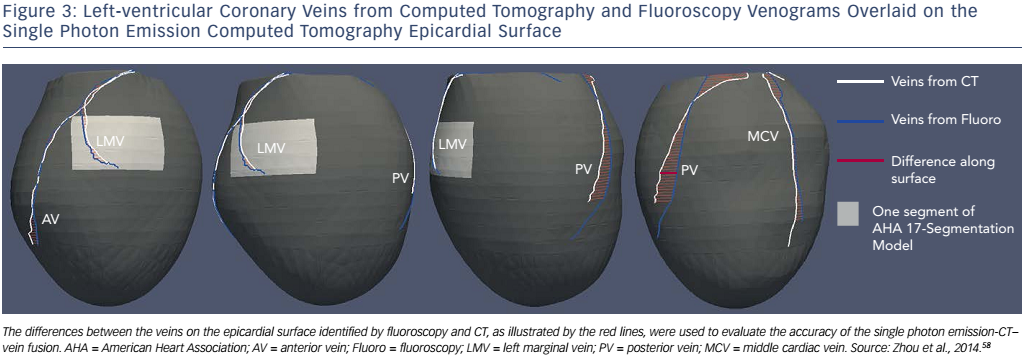 Figure 3: Left-ventricular Coronary Veins from Computed Tomography and Fluoroscopy Venograms Overlaid on the Single Photon Emission Computed Tomography Epicardial Surface