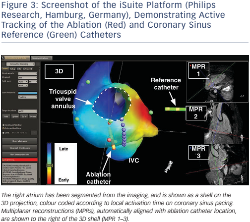 Figure 3: Screenshot of the iSuite Platform (Philips Research, Hamburg, Germany), Demonstrating Active Tracking of the Ablation (Red) and Coronary Sinus Reference (Green) Catheters