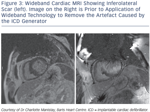 Wideband Cardiac MRI Showing Inferolateral Scar (left). Image on the Right is Prior to Application of Wideband Technology to Remove the Artefact Caused by the ICD Generator
