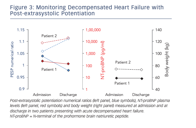 Figure 3: Monitoring Decompensated Heart Failure with Post-extrasystolic Potentiation