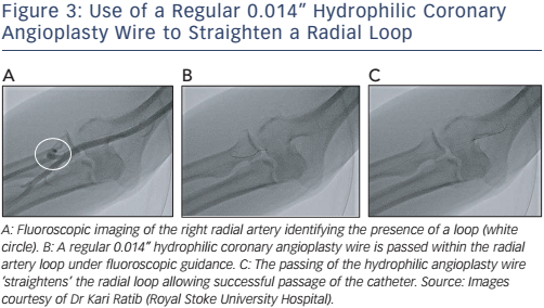 "Figure 3: Use of a Regular 0.014"" Hydrophilic Coronary Angioplasty Wire to Straighten a Radial Loop"