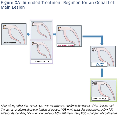 Figure 3A: Intended Treatment Regimen for an Ostial Left Main Lesion