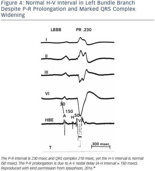 Figure 4: Normal H-V Interval in Left Bundle Branch Despite P-R Prolongation and Marked QRS Complex Widening
