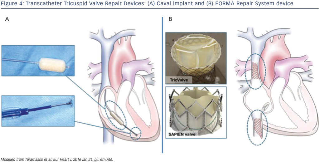 Figure 4: Transcatheter Tricuspid Valve Repair Devices: (A) Caval implant and (B) FORMA Repair System device