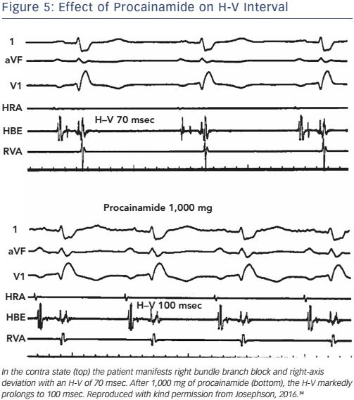 Figure 5: Effect of Procainamide on H-V Interval
