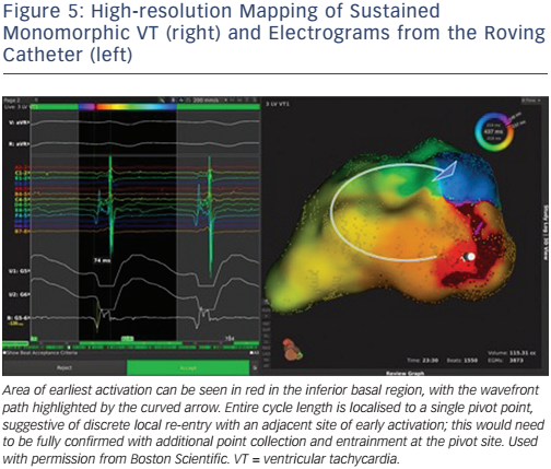 High-resolution Mapping of Sustained Monomorphic VT (right) and Electrograms from the Roving Catheter