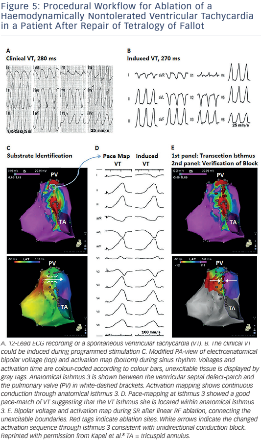 Figure 5: Procedural Workflow For Ablation Of A Haemodynamically Nontolerated Ventricular Tachycardia In A Patient After Repair Of Tetralogy Of Fallot