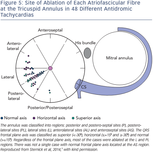 Figure 5: Site of Ablation of Each Atriofascicular Fibre at the Tricuspid Annulus in 48 Different Antidromic Tachycardias