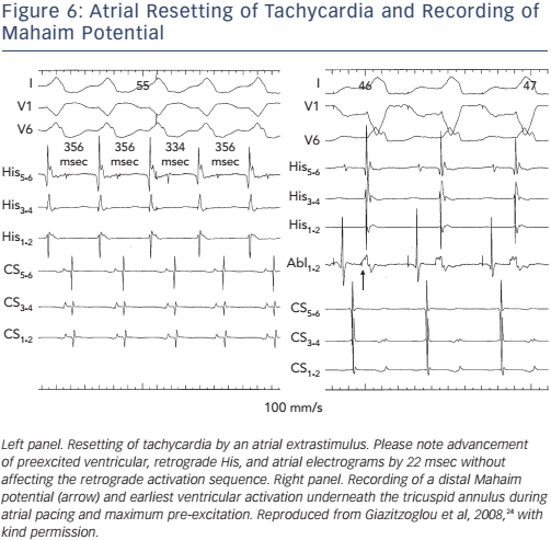 Figure 6: Atrial Resetting of Tachycardia and Recording of Mahaim Potential
