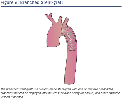 Figure 6: Branched Stent-graft