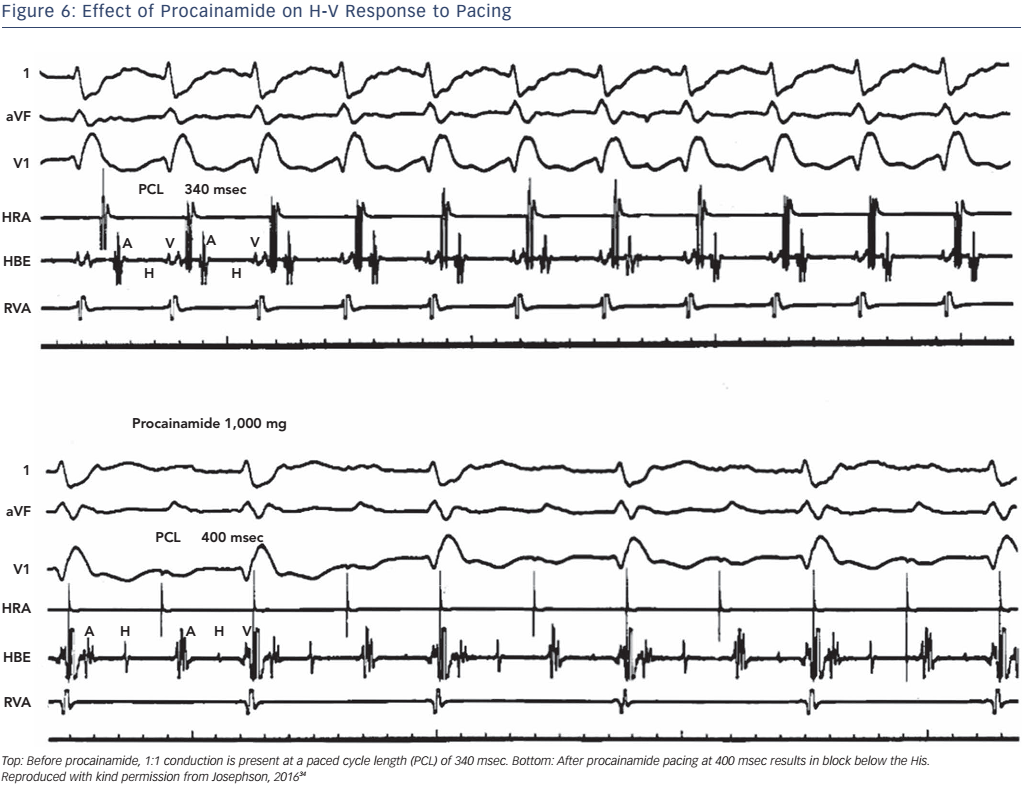 Figure 6: Effect of Procainamide on H-V Response to Pacing