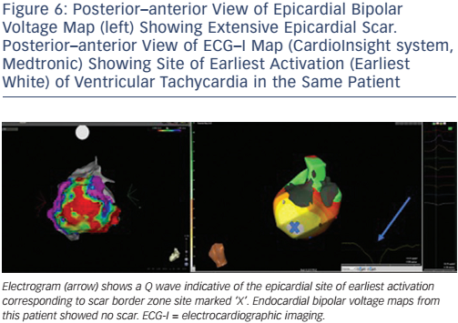 Posterior–anterior View of Epicardial Bipolar Voltage Map (left) Showing Extensive Epicardial Scar. Posterior–anterior View of ECG–I Map (CardioInsight system, Medtronic) Showing Site of Earliest Activation (Earliest White) of Ventricular Tachycardia in the Same Patient