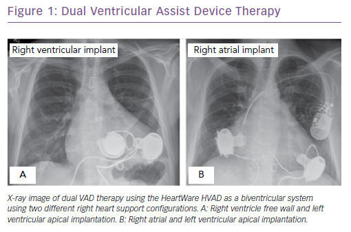Dual Ventricular Assist Device Therapy