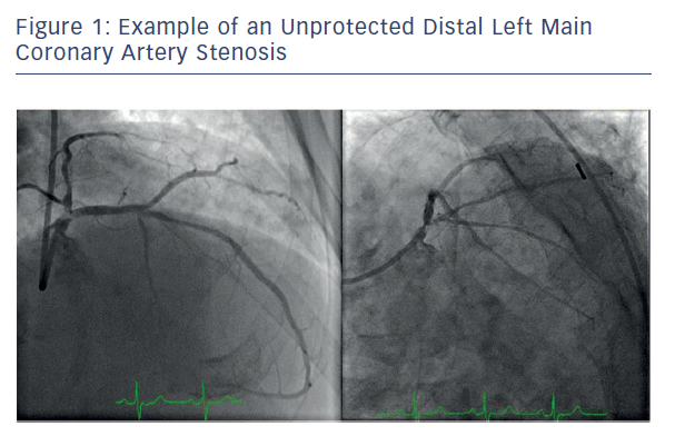 Figure 1: Example of an Unprotected Distal Left Main<br />Coronary Artery Stenosis