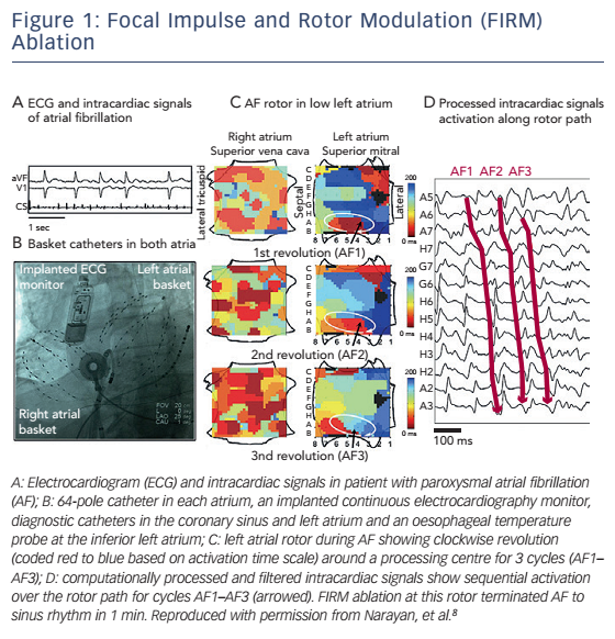 Figure 1: Focal Impulse and Rotor Modulation (FIRM) Ablation
