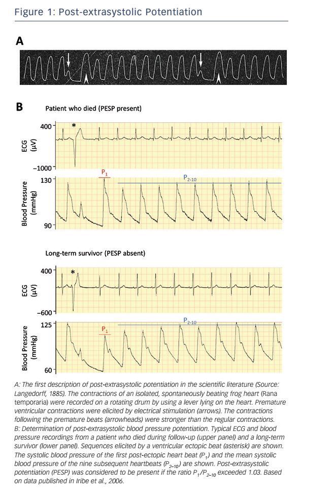 Figure 1: Post-extrasystolic Potentiation