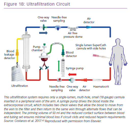 Ultrafiltration Circuit
