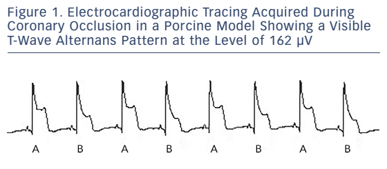 Figure 1. Electrocardiographic Tracing Acquired During Coronary Occlusion in a Porcine Model Showing a Visible T-Wave Alternans Pattern at the Level of 162 µV