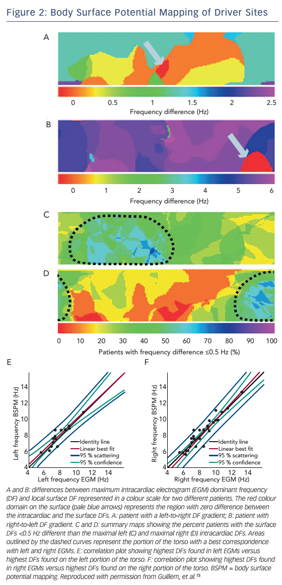 Figure 2: Body Surface Potential Mapping of Driver Sites