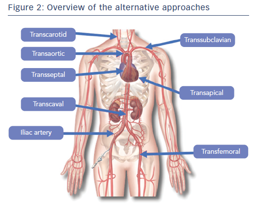 Figure 2: Overview of the alternative approaches