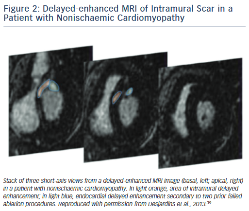 Figure 2: Delayed-enhanced MRI of Intramural Scar in a Patient with Nonischaemic Cardiomyopathy