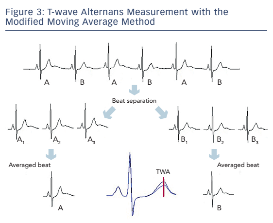 Figure 3: T-wave Alternans Measurement with the Modified Moving Average Method
