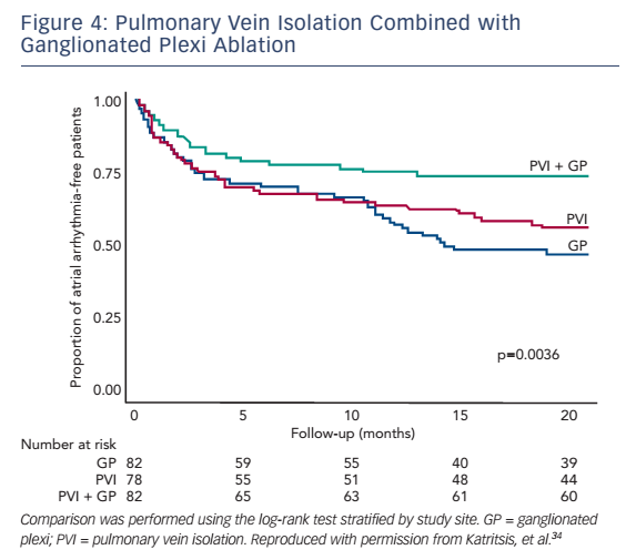 Figure 4: Pulmonary Vein Isolation Combined with Ganglionated Plexi Ablation