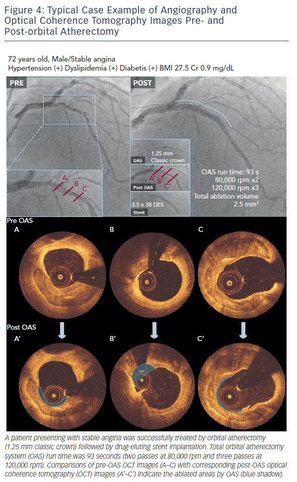 Typical Case Example of Angiography and Optical Coherence Tomography Images Pre- and Post-orbital Atherectomy