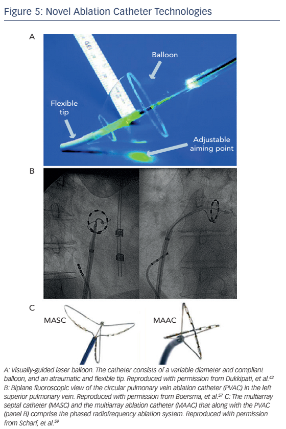 Figure 5: Novel Ablation Catheter Technologies