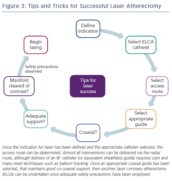 Figure 3: Tips and Tricks for Successful Laser Atherectomy