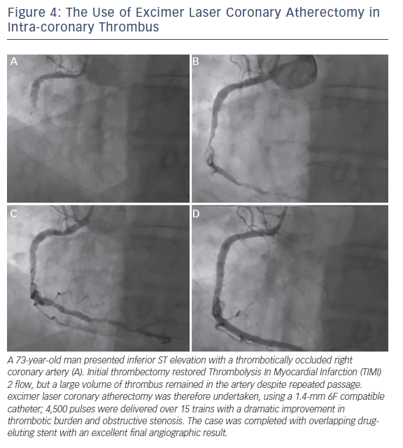 Figure 4: The Use of Excimer Laser Coronary Atherectomy in Intra-coronary Thrombus