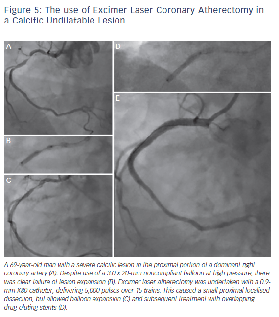 Figure 5: The use of Excimer Laser Coronary Atherectomy in a Calcific Undilatable Lesion