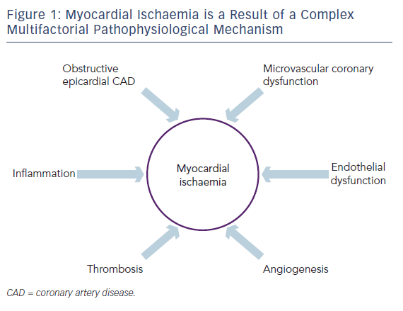 Figure 1: Myocardial Ischaemia is a Result of a Complex Multifactorial Pathophysiological Mechanism