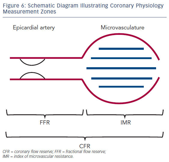 Figure 6: Schematic Diagram Illustrating Coronary Physiology Measurement Zones