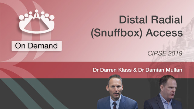 Distal Radial (Snuffbox) Access