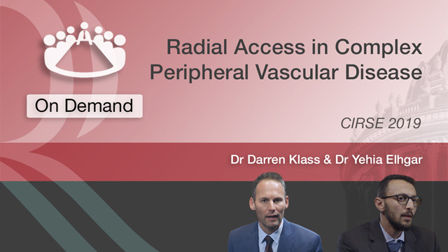 Radial Access in Complex Peripheral Vascular Disease
