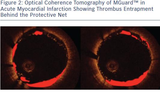 Optical Coherence Tomography of MGuard™