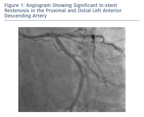 Angiogram Showing Significant In-stent Restenosis in the Proximal and Ostial Left Anterior Descending Artery