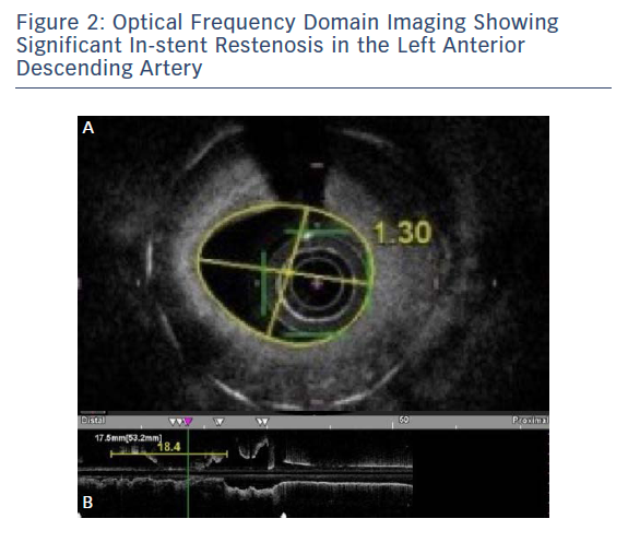 Optical Frequency Domain Imaging Showing Significant In-stent Restenosis in the Left Anterior Descending Artery