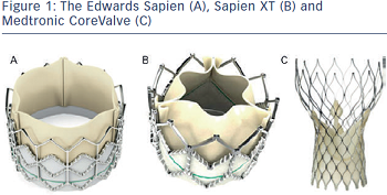 The Edwards Sapien (A), Sapien XT (B) and Medtronic CoreValve (C)