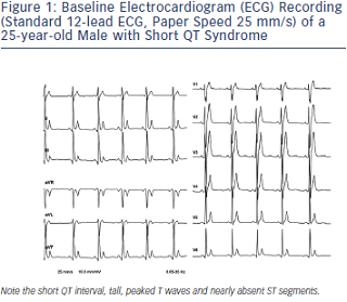 Baseline Electrocardiogram Recording of a 25-year-old Male with Short QT Syndrome