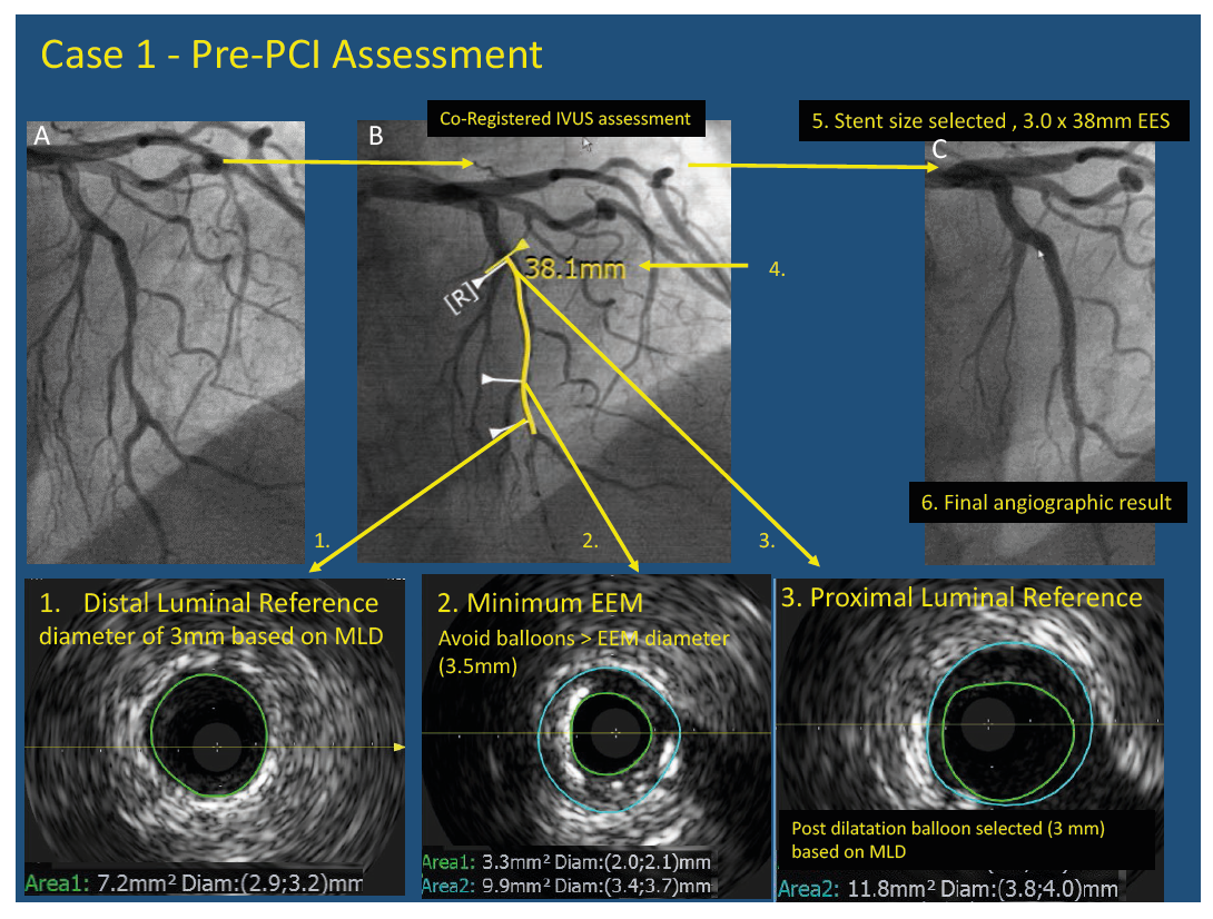 Case 1 - Pre-PCI Assessment