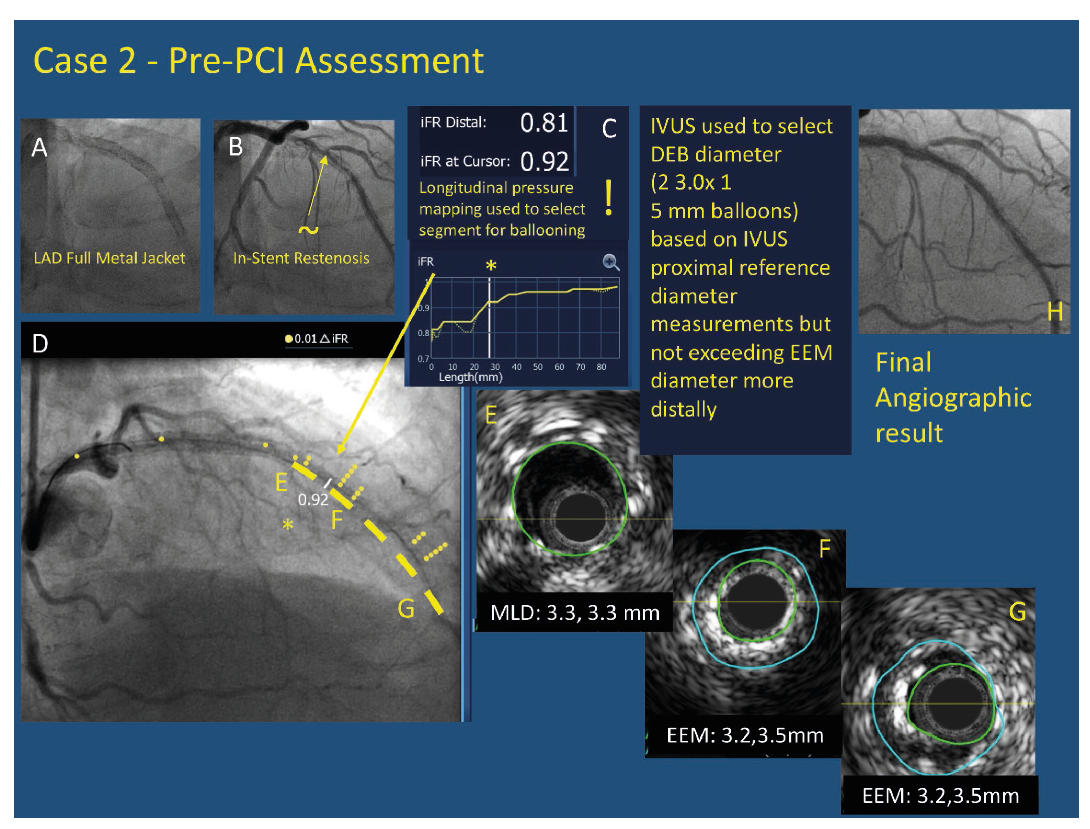 Case 2 - Pre-PCI Assessment