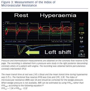 Measurement of the Index of Microvascular Resistance