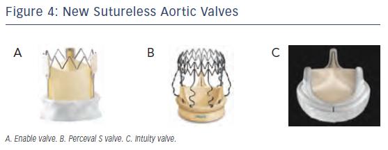 New Sutureless Aortic Valves