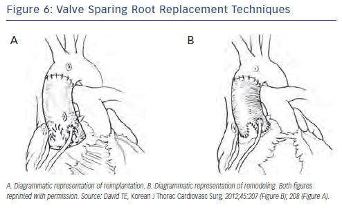 Valve Sparing Root Replacement Techniques